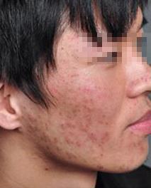 丘疹性痤疮的症状图