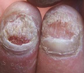 灰指甲的症状图(一)