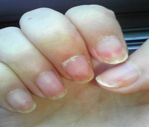 灰指甲的症状图(二)