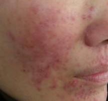 脂溢性皮炎的症状图