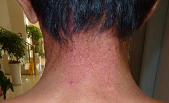 神经性皮炎的症状图